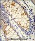 SFRS1 Antibody (C-term)