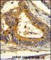 SCAP Antibody (Center)