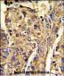 HNRPL Antibody (C-term)