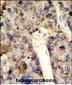 HNRPL Antibody (Center)