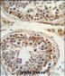 ITGB3 Antibody (C-term)