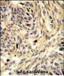 HSPD1 Antibody (C-term)