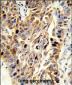 EFEMP1 Antibody (N-term)