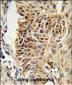 CIRBP Antibody (C-term)