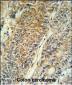 PYCR1 Antibody (C-term)