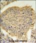 TPC6A Antibody (N-term)