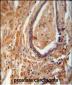 NDUFAF1 Antibody (C-term)