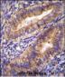 PTGS2 Antibody (Center P378)