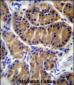 IL17B Antibody (Center)