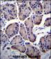 RPL23 Antibody (Center)