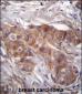 LPAR6 Antibody (Center)