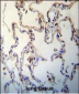 RAGE (AGER) Antibody (C-term)