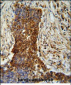 MMP2 Antibody (Ascites)